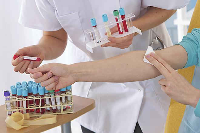Полезно ли сдавать кровь при варикозе
