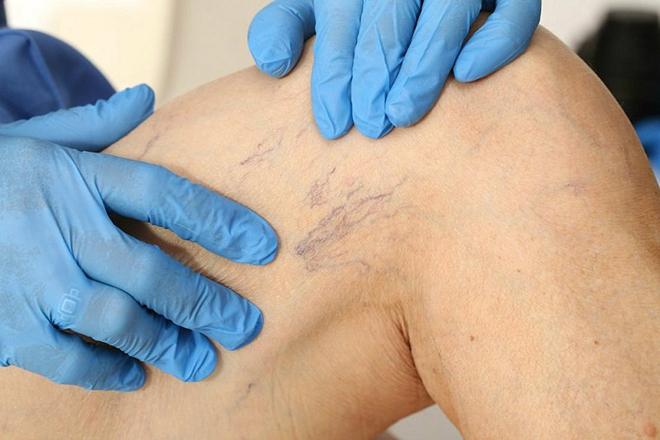 Можно ли сдавать кровь с ретикулярным варикозом