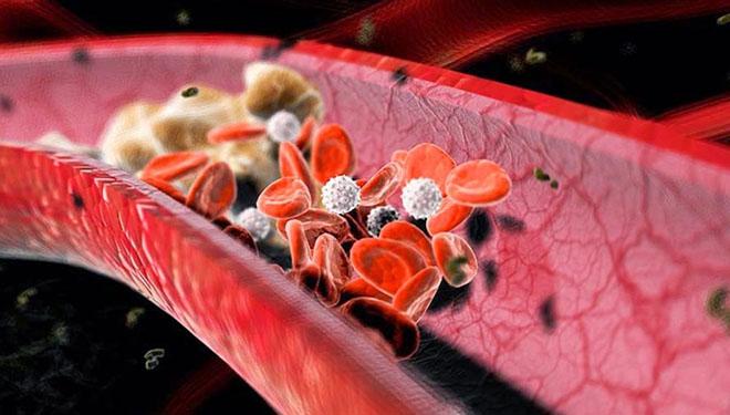 Индивидуальные особенности свертывающей системы крови