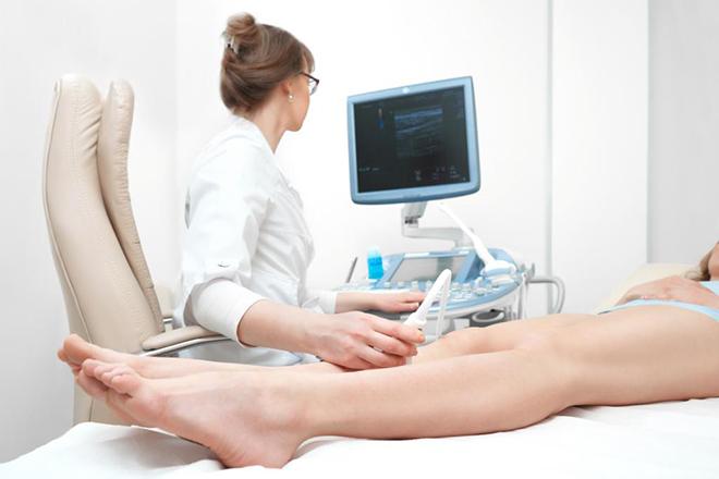 УЗИ варикоза ног
