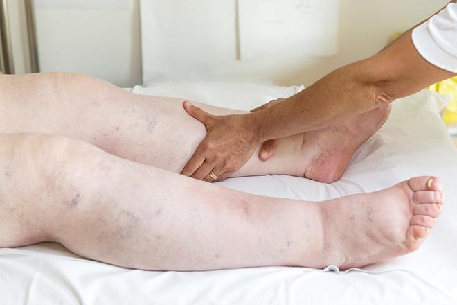 Что делать, если отёки ног после родов не проходят?
