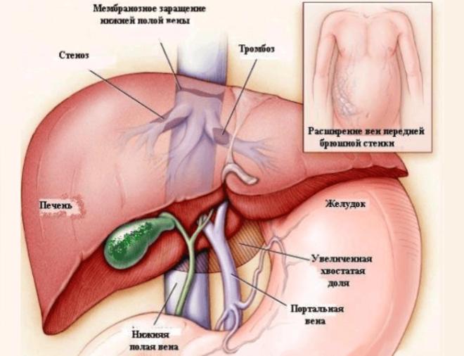Симптом характерный для заболеваний гепатобилиарной системы