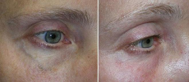 Что представляет из себя варикоз глазных вен?