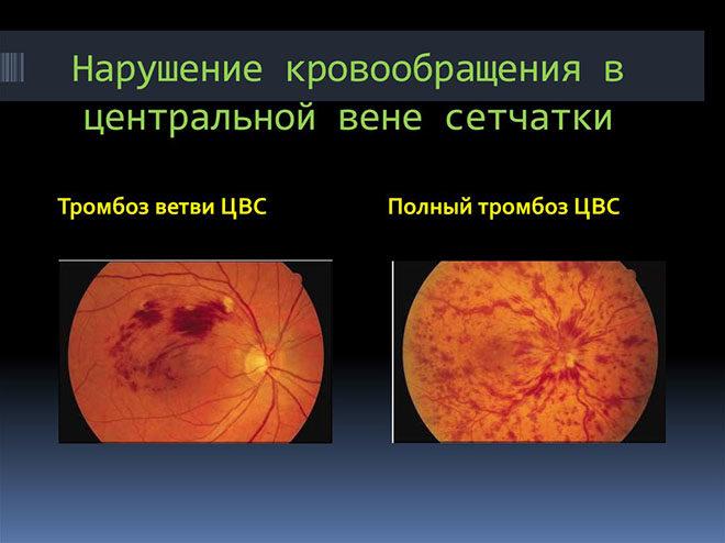 Можно ли ослепнуть? Риски и опасности заболевания