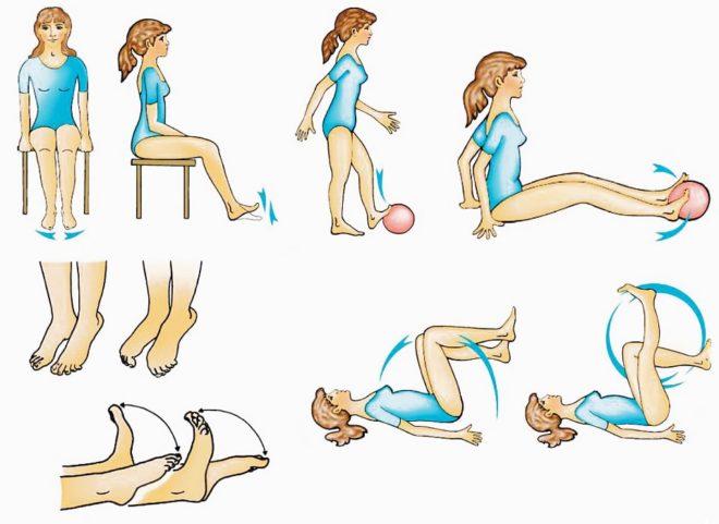 физическая активность при варикозе бедра