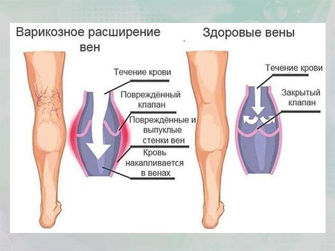 Симптомы и стадии развития заболевания