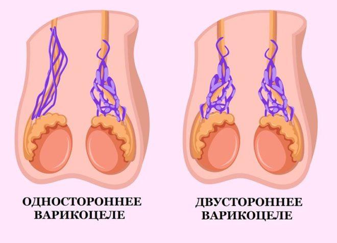 Виды варикоцеле