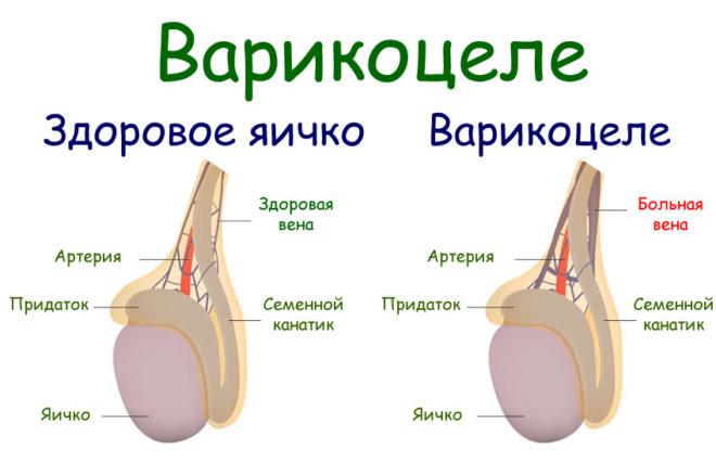 Нулевая и первая степени варикоцеле
