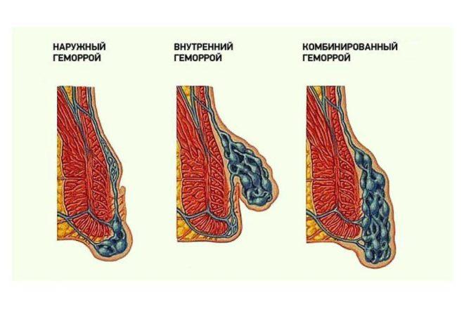 Особенности лечения наружного внутреннего и комбинированного геморроя
