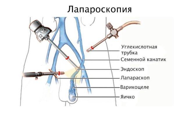 Эндоскопическая операция – лапароскопия