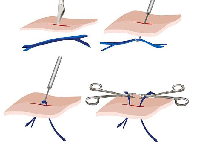 Как проводится операция минифлебэктомия