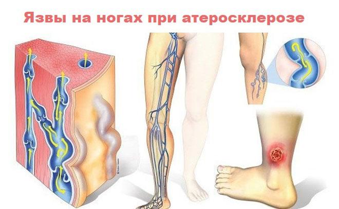 Атеросклеротические (артериальные)