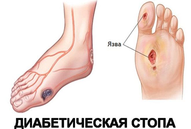 Диабетические язвы