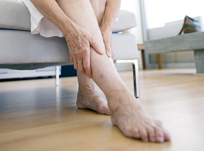 Как возникает отечность ног