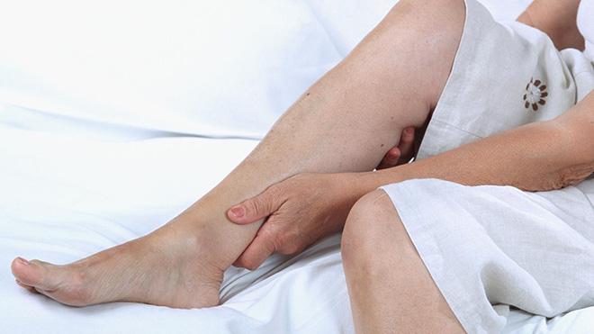 Судороги ног при варикозе