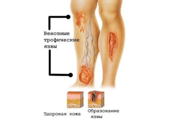 Венозные трофические язвы