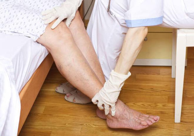 Поддерживающая терапия и компрессионное лечение