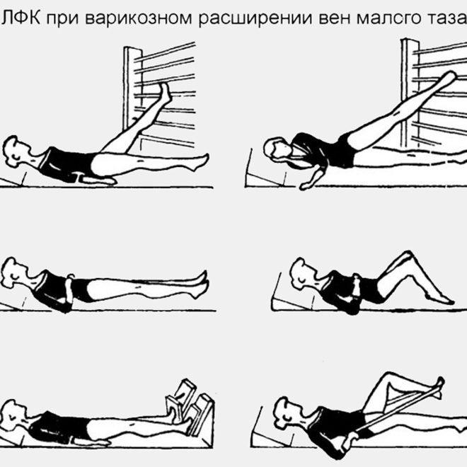 Профилактические упражнения при варикозе малого таза